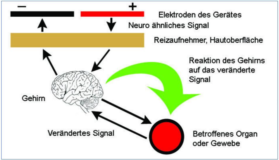 Abb. 1: Die DENAS-Therapie ermöglicht eine dynamische Kommunikation zwischen Gerät und Körper